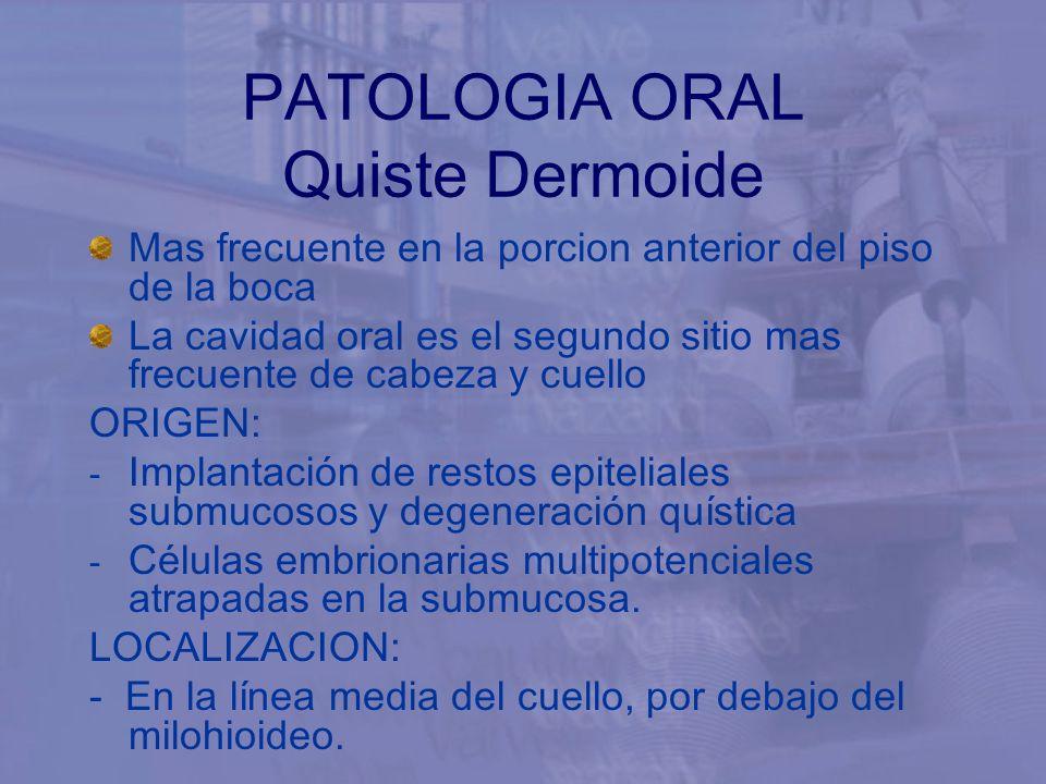 PATOLOGIA ORAL Quiste Dermoide