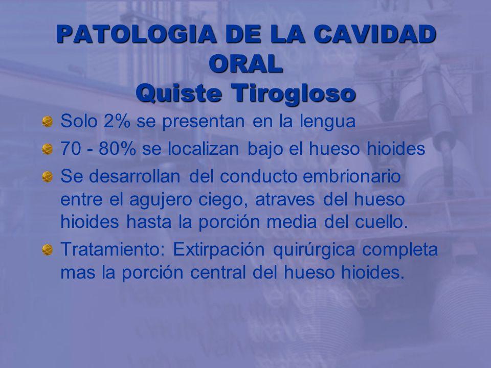 PATOLOGIA DE LA CAVIDAD ORAL Quiste Tirogloso