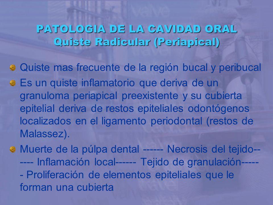 PATOLOGIA DE LA CAVIDAD ORAL Quiste Radicular (Periapical)