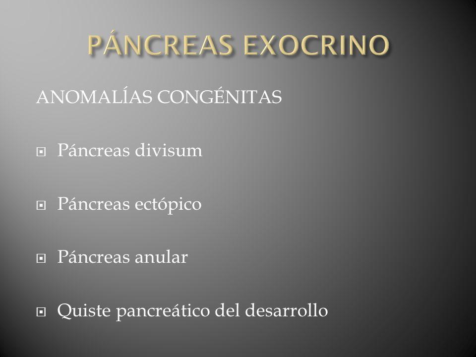 PÁNCREAS EXOCRINO ANOMALĺAS CONGÉNITAS Páncreas divisum