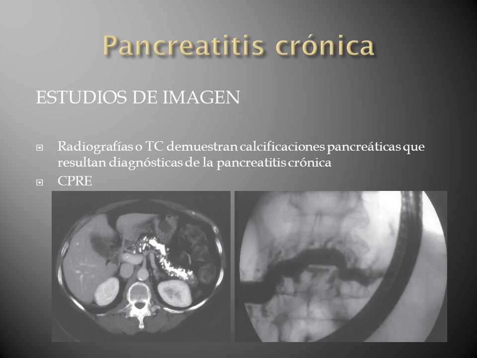 Pancreatitis crónica ESTUDIOS DE IMAGEN
