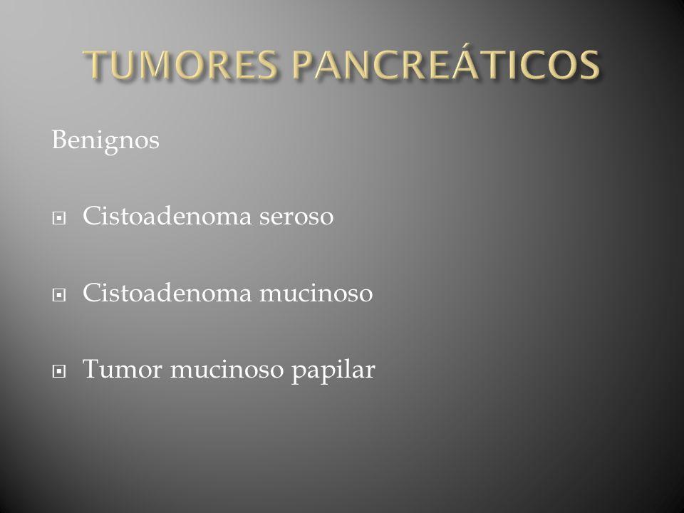 TUMORES PANCREÁTICOS Benignos Cistoadenoma seroso