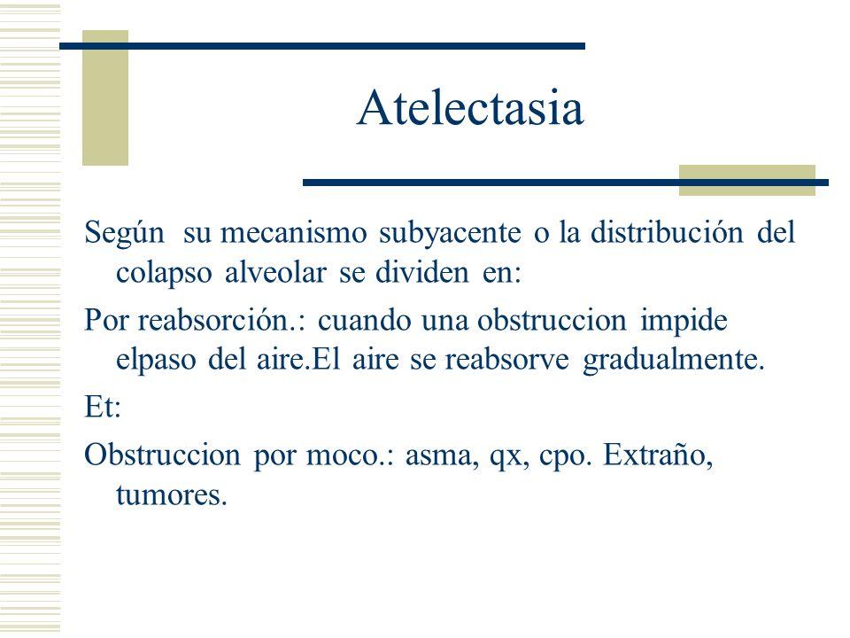 Atelectasia Según su mecanismo subyacente o la distribución del colapso alveolar se dividen en:
