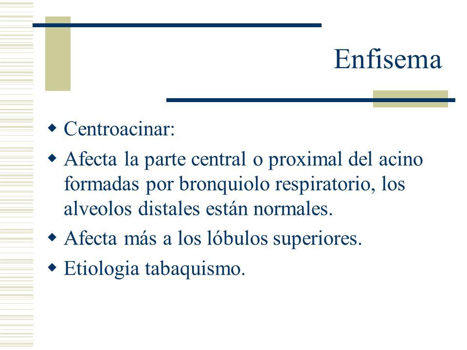 Enfisema Centroacinar: