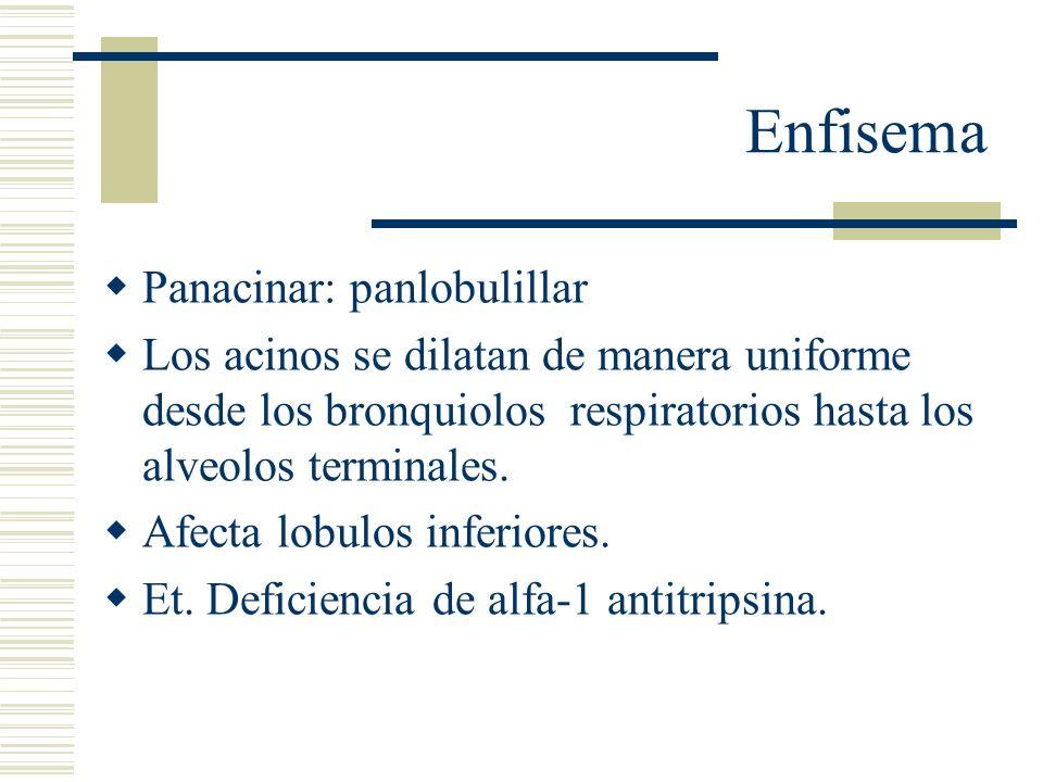Enfisema Panacinar: panlobulillar