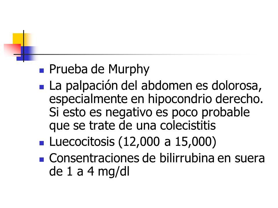 Prueba de Murphy