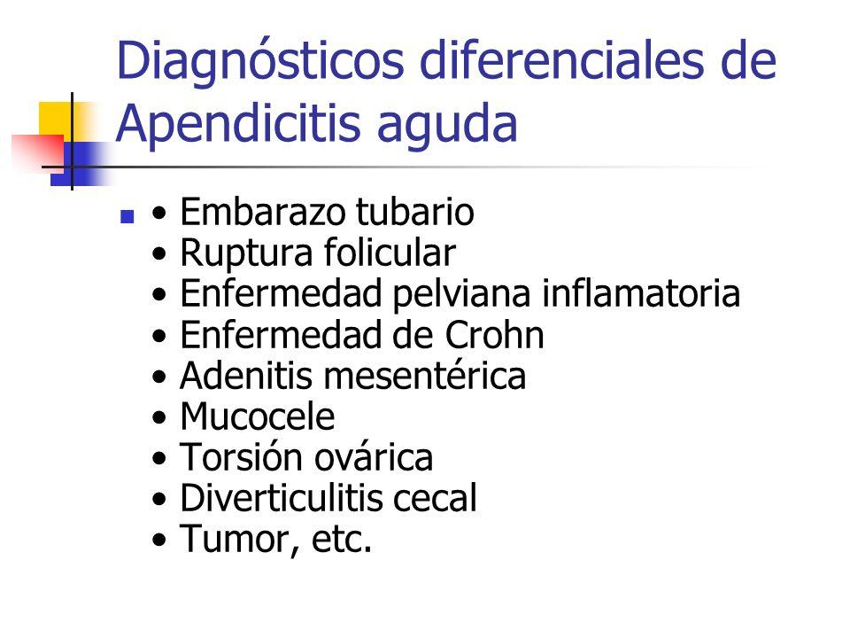 Diagnósticos diferenciales de Apendicitis aguda