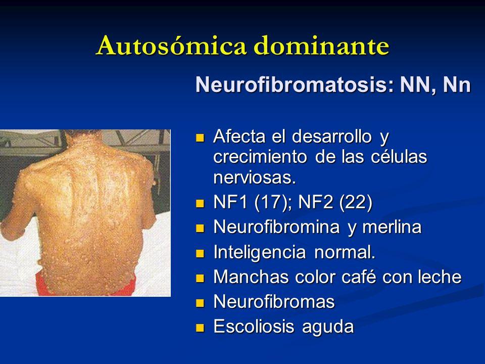 Autosómica dominante Neurofibromatosis: NN, Nn