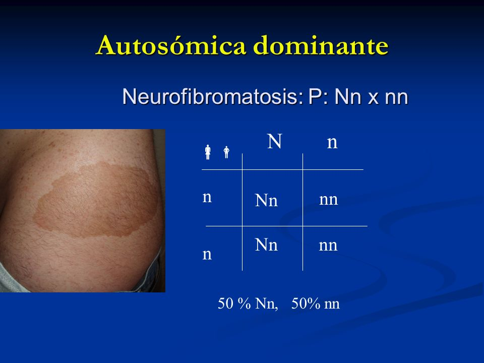 Autosómica dominante Neurofibromatosis: P: Nn x nn N n  n Nn nn Nn