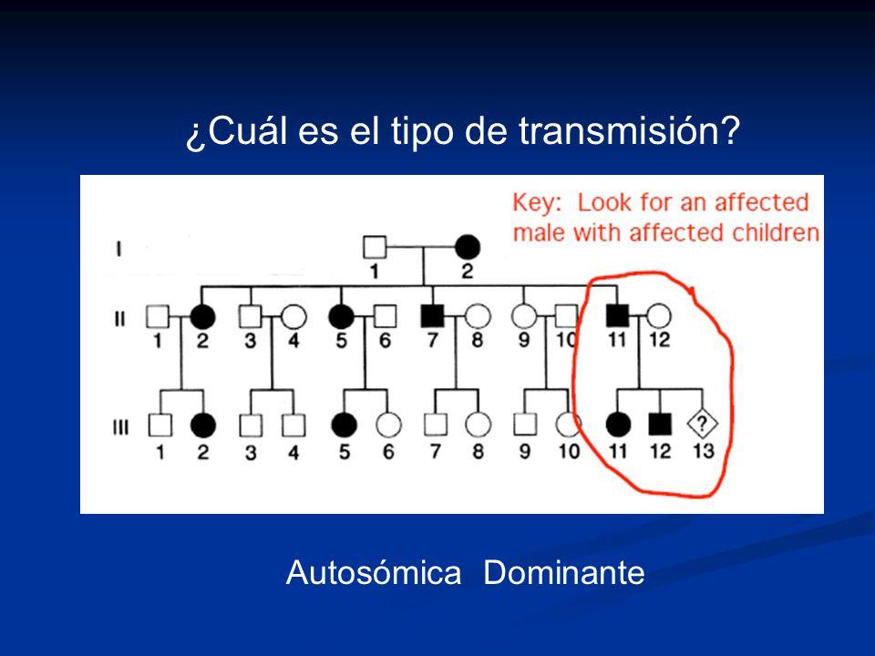 ¿Cuál es el tipo de transmisión