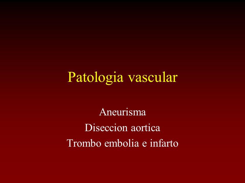 Aneurisma Diseccion aortica Trombo embolia e infarto