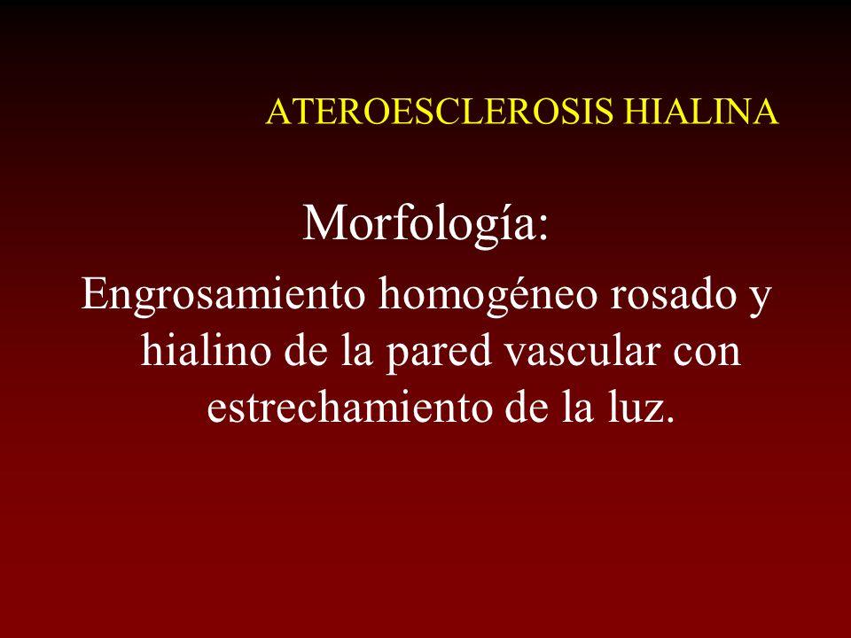 ATEROESCLEROSIS HIALINA