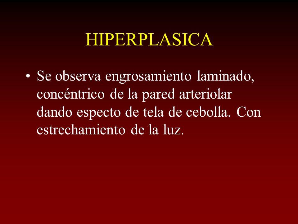 HIPERPLASICA Se observa engrosamiento laminado, concéntrico de la pared arteriolar dando especto de tela de cebolla.