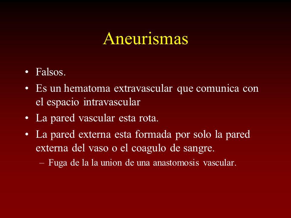 Aneurismas Falsos. Es un hematoma extravascular que comunica con el espacio intravascular. La pared vascular esta rota.