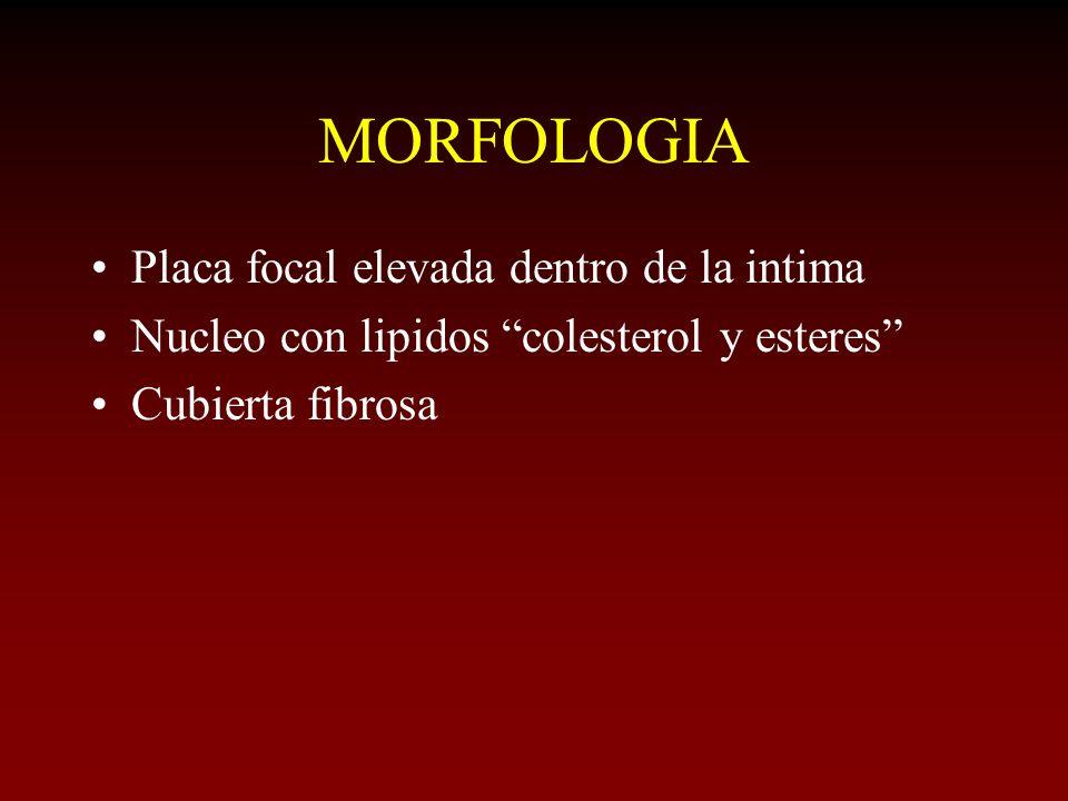 MORFOLOGIA Placa focal elevada dentro de la intima
