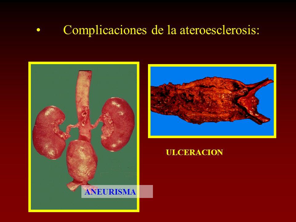 Complicaciones de la ateroesclerosis: