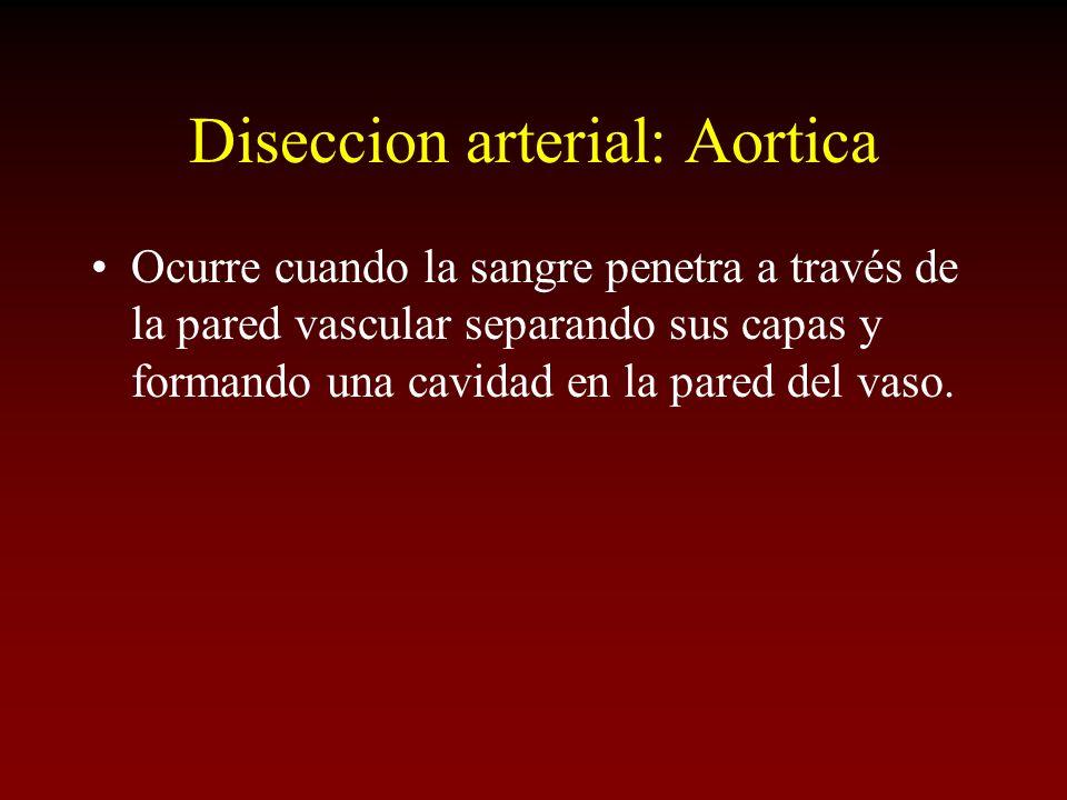 Diseccion arterial: Aortica