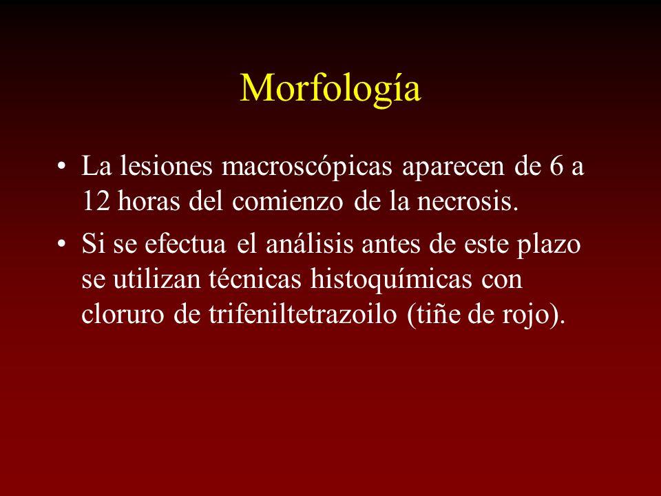 Morfología La lesiones macroscópicas aparecen de 6 a 12 horas del comienzo de la necrosis.