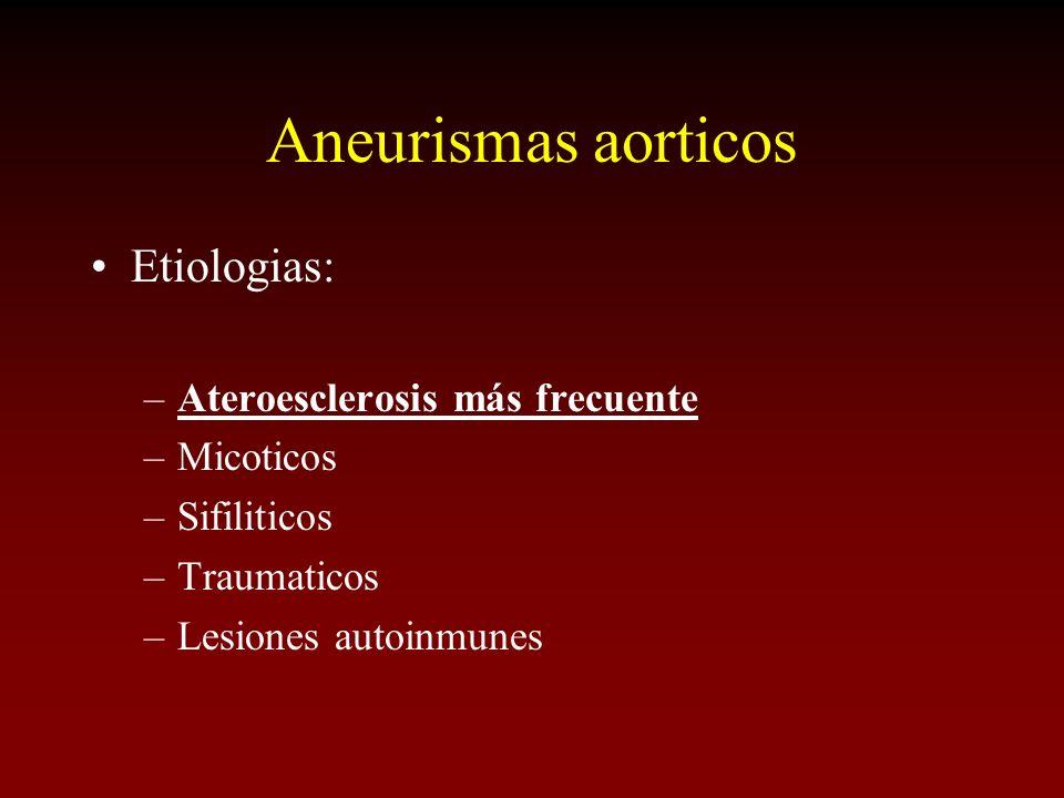 Aneurismas aorticos Etiologias: Ateroesclerosis más frecuente