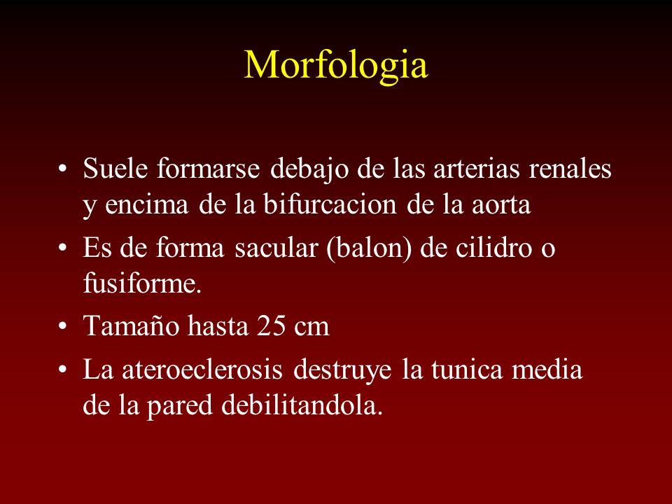 Morfologia Suele formarse debajo de las arterias renales y encima de la bifurcacion de la aorta. Es de forma sacular (balon) de cilidro o fusiforme.