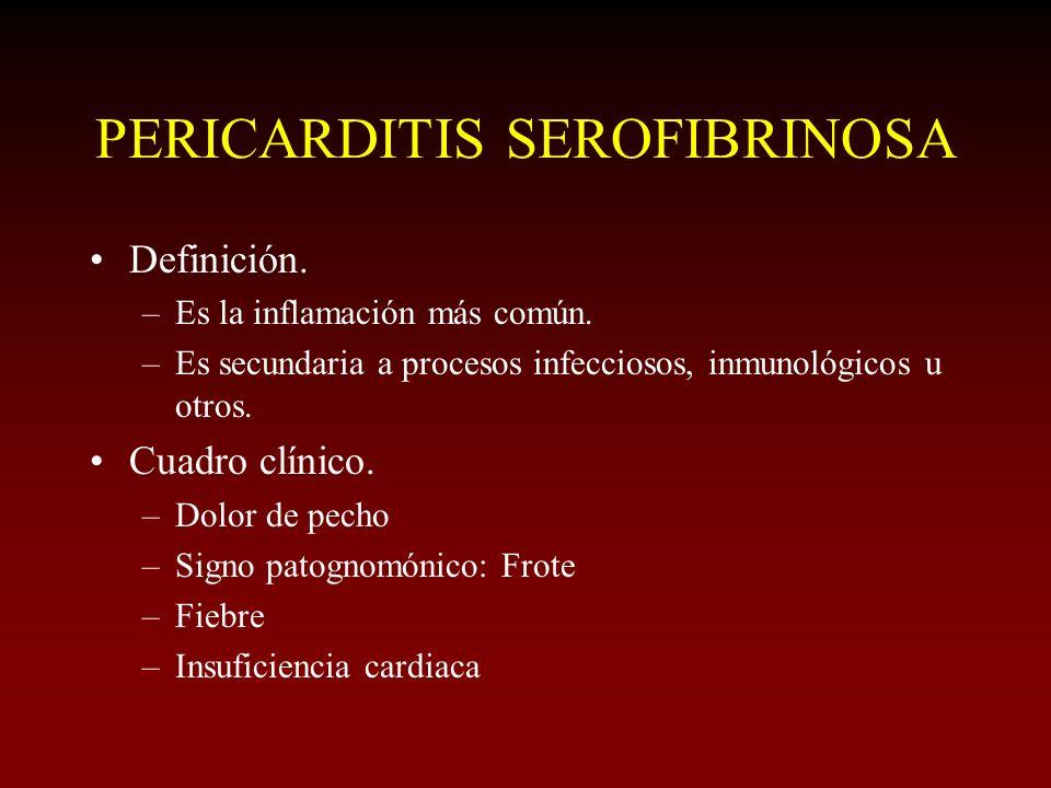 PERICARDITIS SEROFIBRINOSA