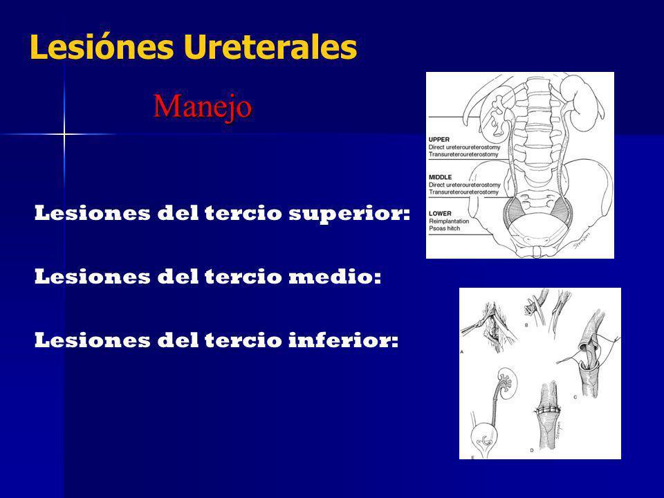 Lesiónes Ureterales Manejo Lesiones del tercio superior: