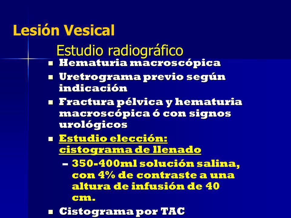 Lesión Vesical Estudio radiográfico Hematuria macroscópica