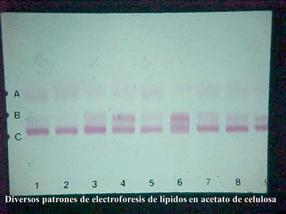 Diversos patrones de electroforesis de lípidos en acetato de celulosa