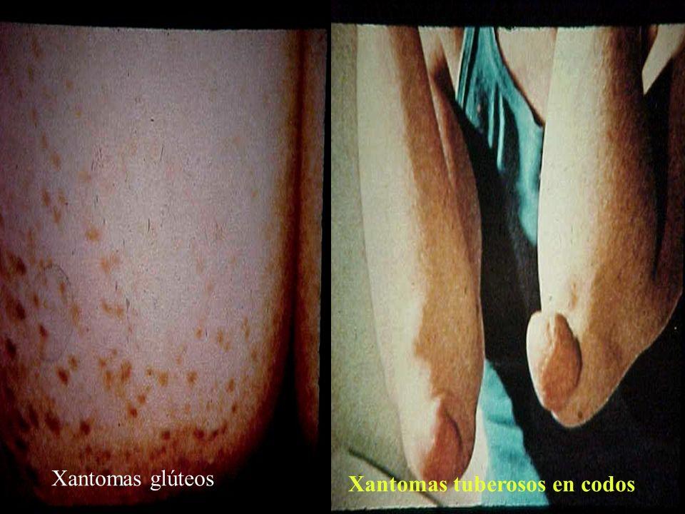 Xantomas glúteos Xantomas tuberosos en codos