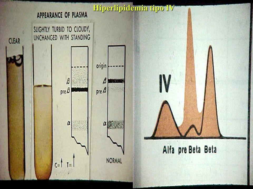 Hiperlipidemia tipo IV