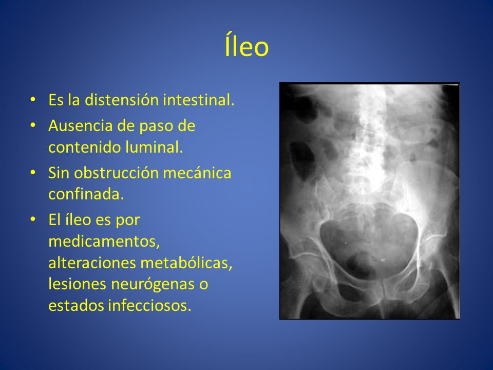 Íleo Es la distensión intestinal.
