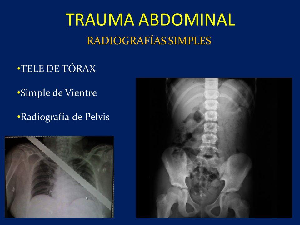 TRAUMA ABDOMINAL RADIOGRAFÍAS SIMPLES TELE DE TÓRAX Simple de Vientre