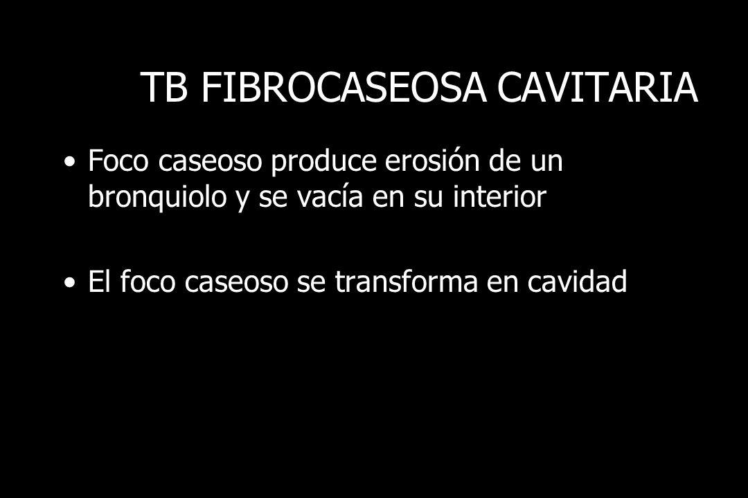 TB FIBROCASEOSA CAVITARIA
