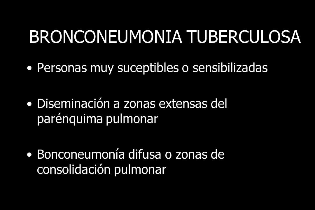 BRONCONEUMONIA TUBERCULOSA
