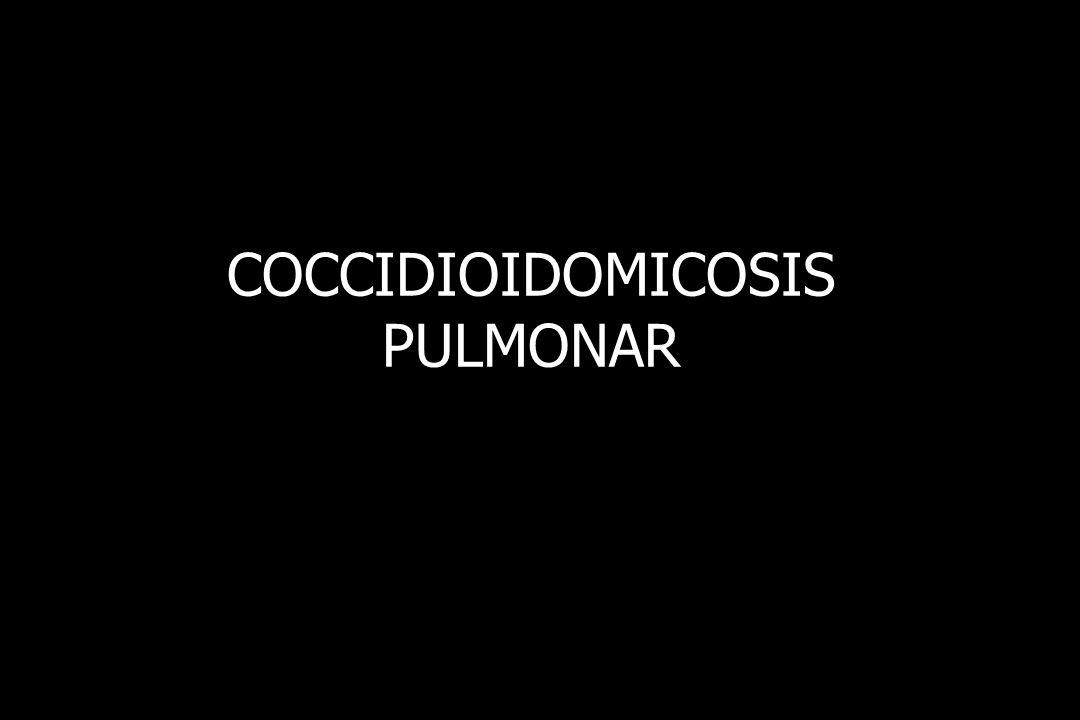 COCCIDIOIDOMICOSIS PULMONAR