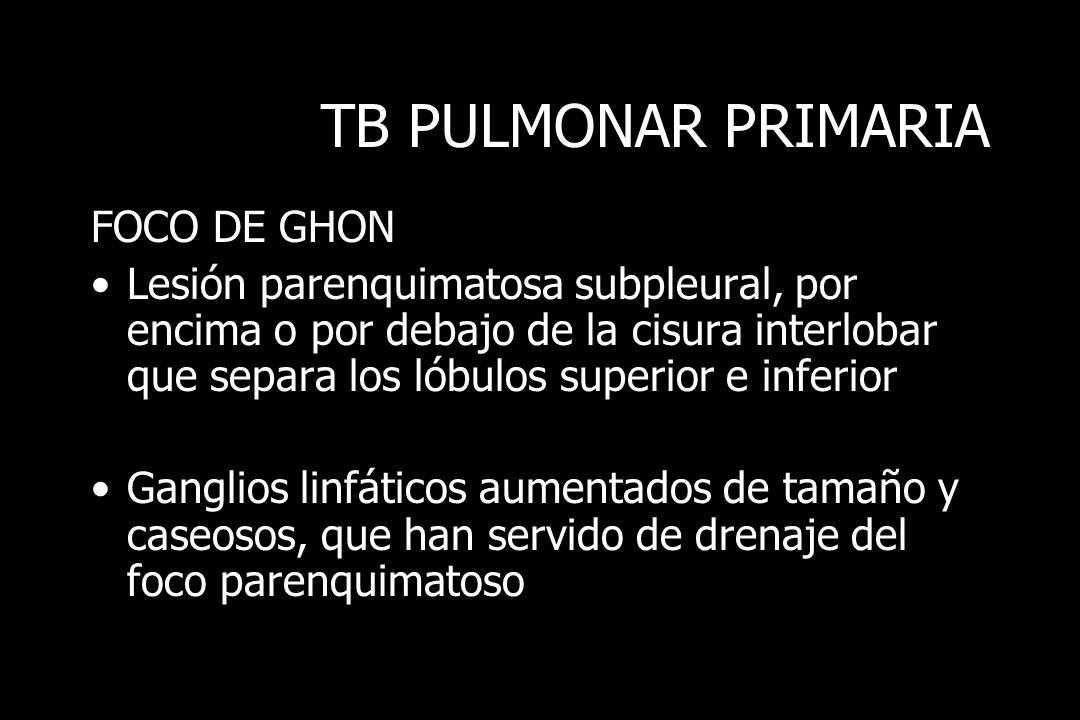 TB PULMONAR PRIMARIA FOCO DE GHON