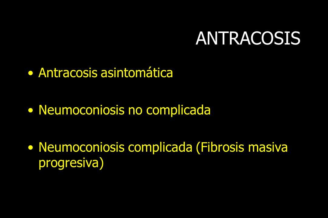 ANTRACOSIS Antracosis asintomática Neumoconiosis no complicada