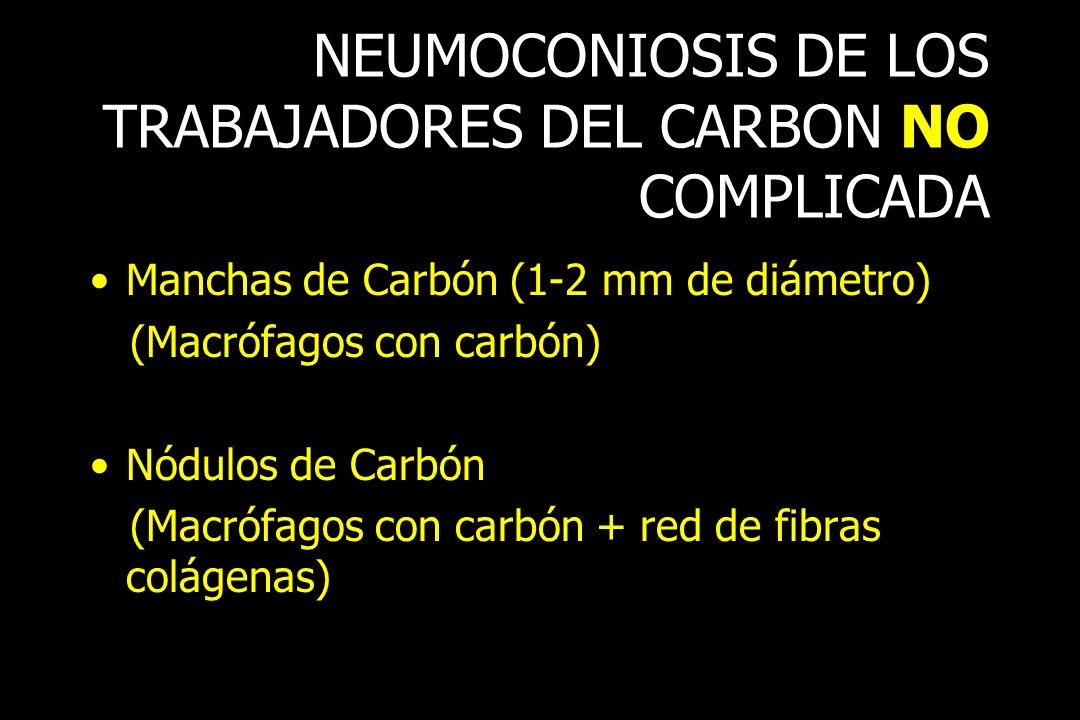 NEUMOCONIOSIS DE LOS TRABAJADORES DEL CARBON NO COMPLICADA