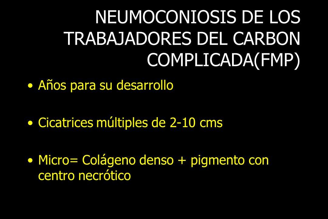 NEUMOCONIOSIS DE LOS TRABAJADORES DEL CARBON COMPLICADA(FMP)