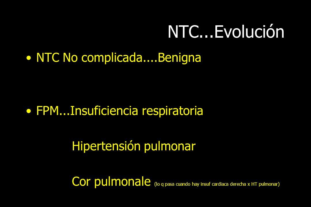NTC...Evolución NTC No complicada....Benigna