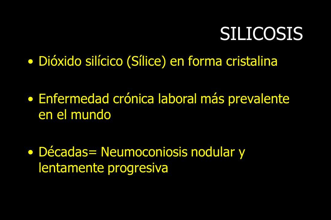 SILICOSIS Dióxido silícico (Sílice) en forma cristalina