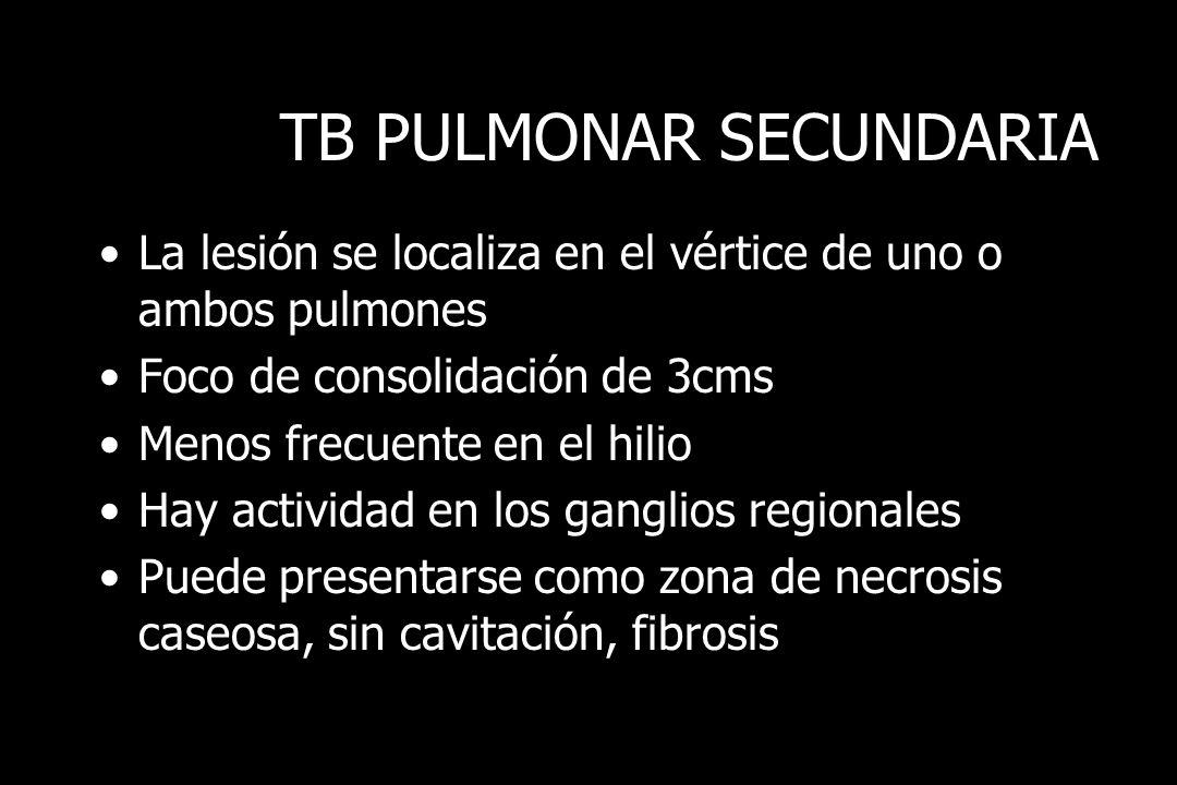TB PULMONAR SECUNDARIA