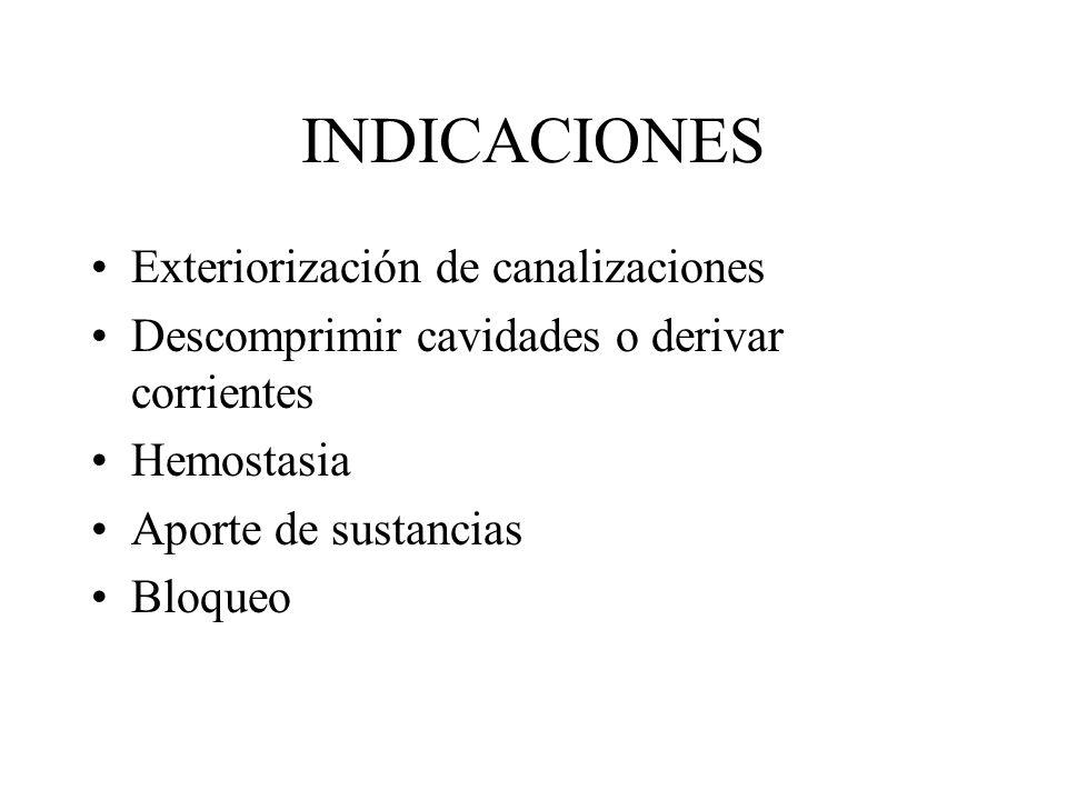 INDICACIONES Exteriorización de canalizaciones