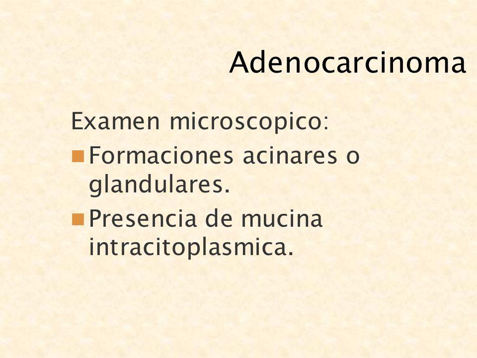Adenocarcinoma Examen microscopico: