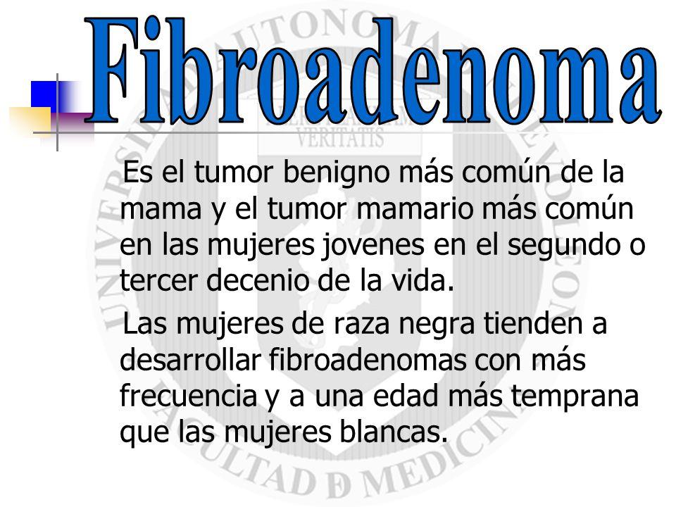 Fibroadenoma Es el tumor benigno más común de la mama y el tumor mamario más común en las mujeres jovenes en el segundo o tercer decenio de la vida.