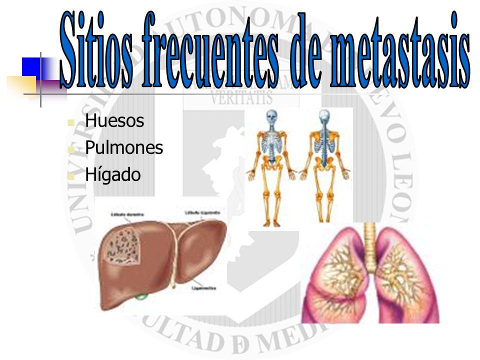 Sitios frecuentes de metastasis
