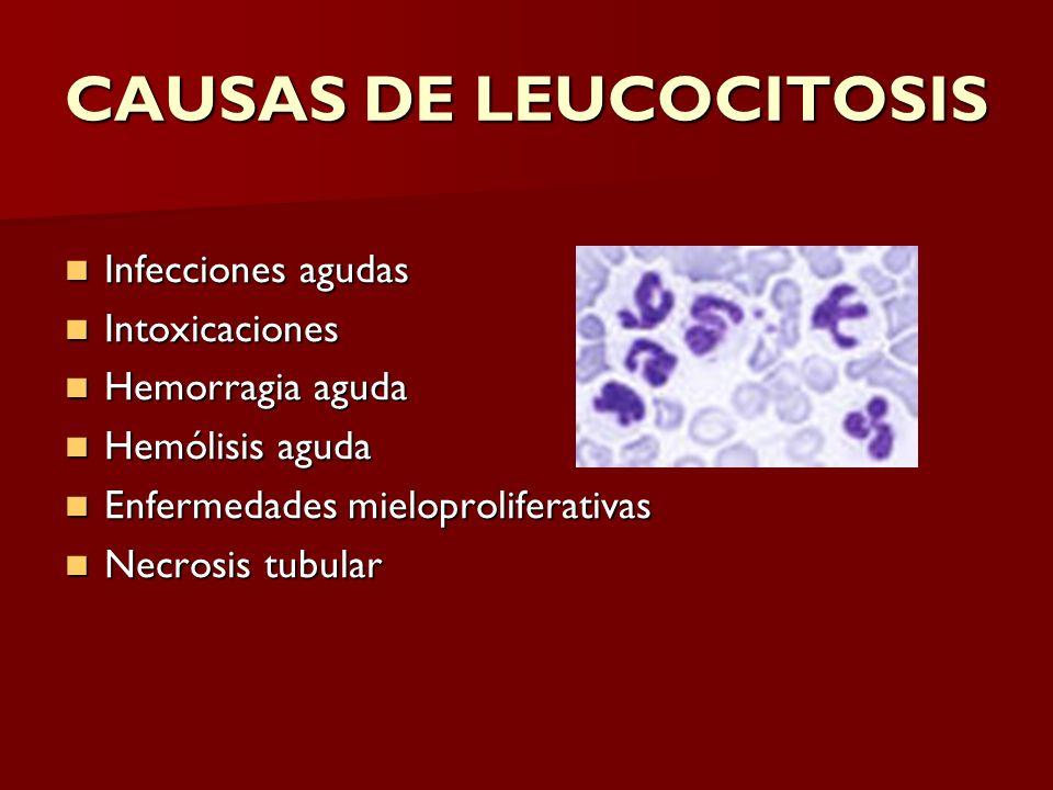 CAUSAS DE LEUCOCITOSIS