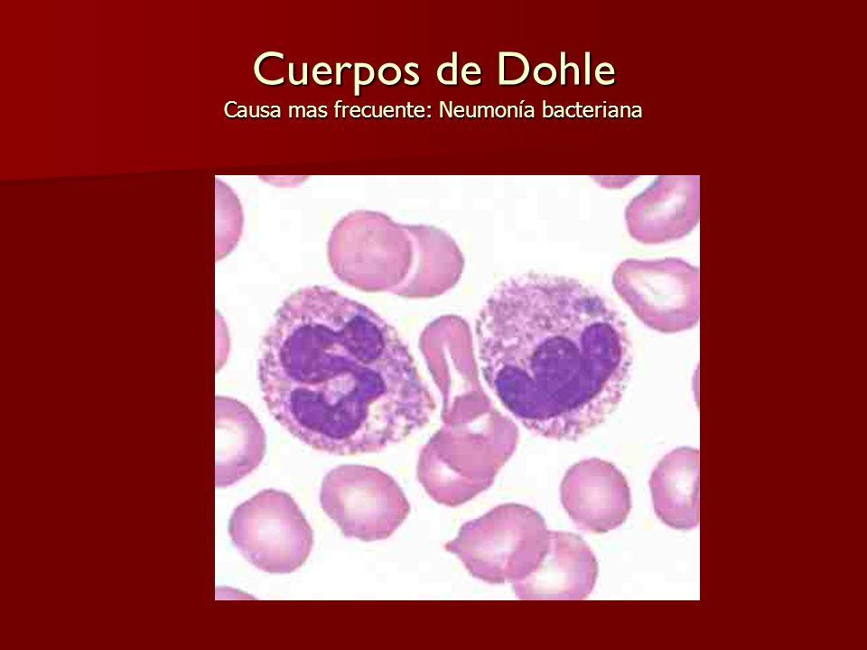 Cuerpos de Dohle Causa mas frecuente: Neumonía bacteriana