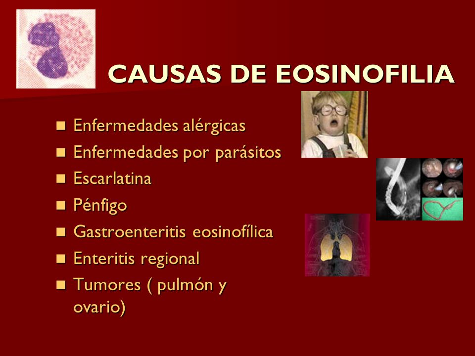 CAUSAS DE EOSINOFILIA Enfermedades alérgicas
