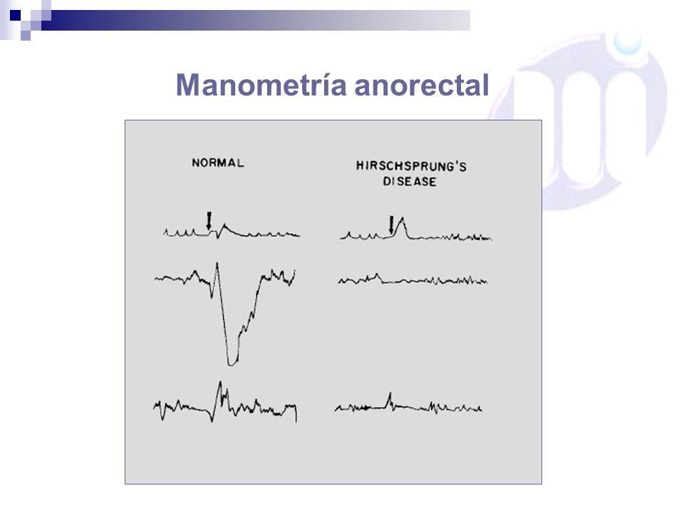 Manometría anorectal